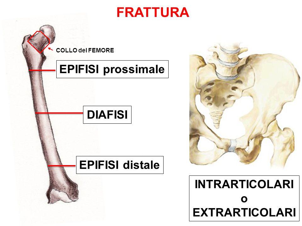 FRATTURA EPIFISI prossimale DIAFISI EPIFISI distale INTRARTICOLARI o EXTRARTICOLARI COLLO del FEMORE