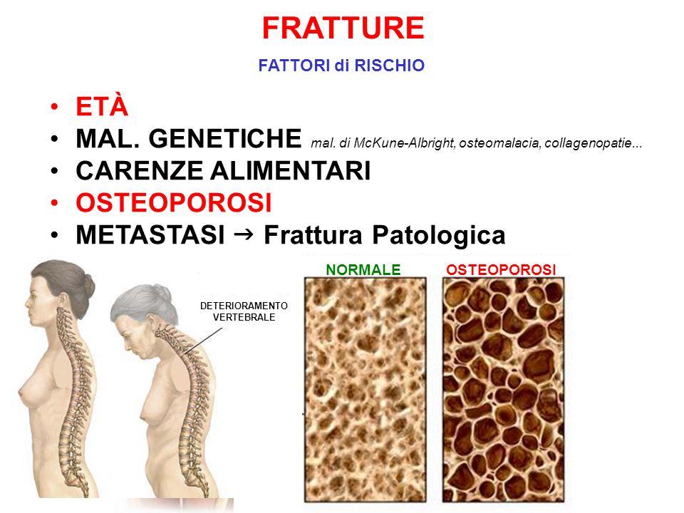 FRATTURE FATTORI di RISCHIO NORMALEOSTEOPOROSI ETÀ MAL. GENETICHE mal. di McKune-Albright, osteomalacia, collagenopatie... CARENZE ALIMENTARI OSTEOPOR