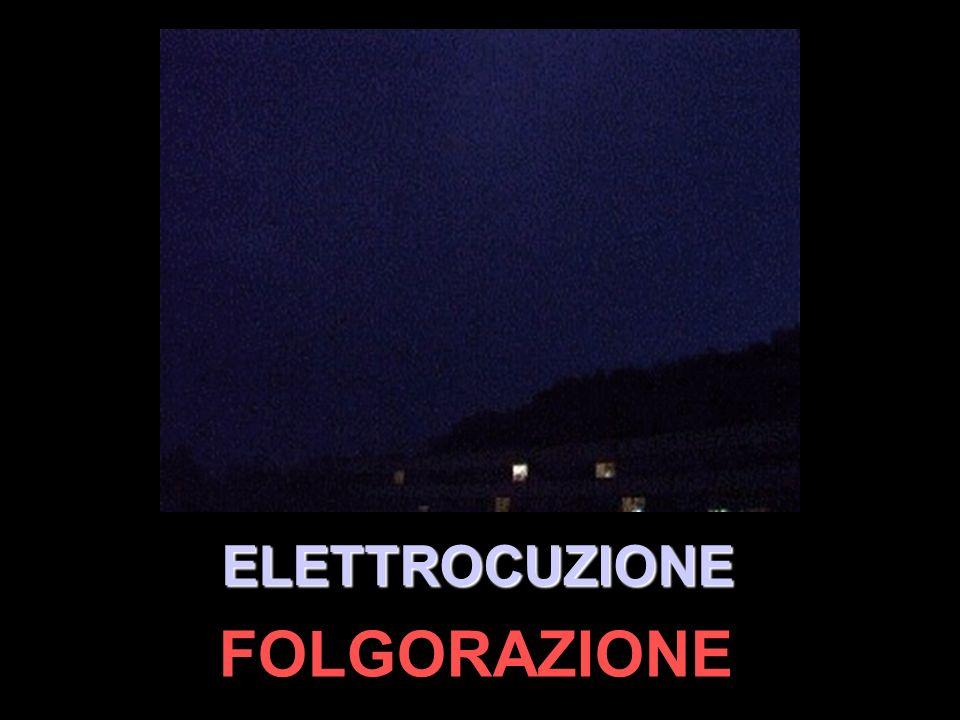 FOLGORAZIONE ELETTROCUZIONE