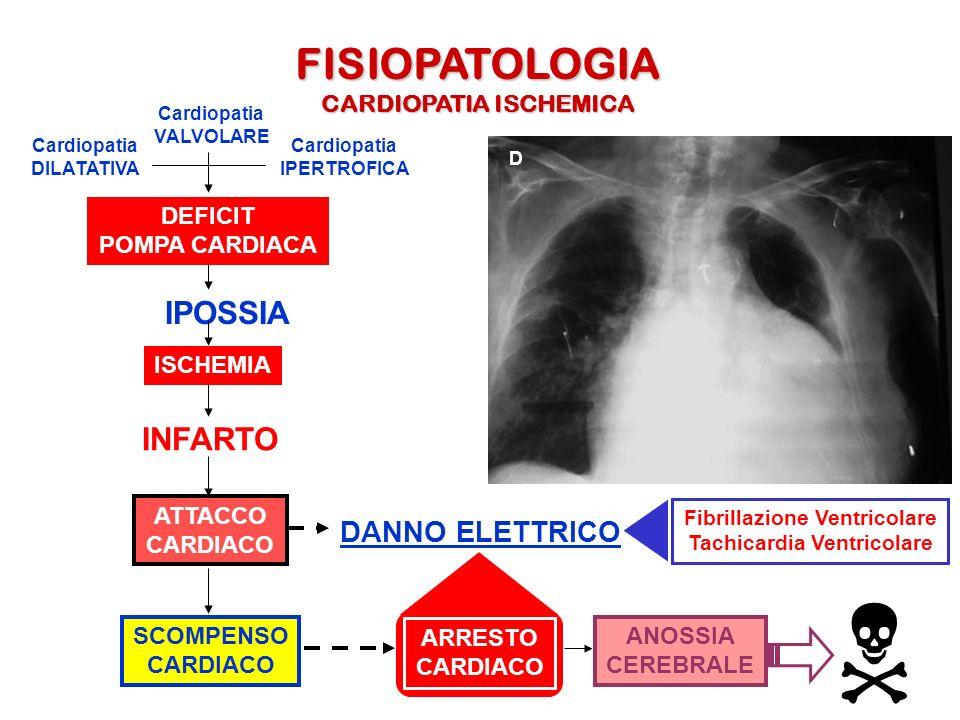 FISIOPATOLOGIA CARDIOPATIA ISCHEMICA Cardiopatia DILATATIVA Cardiopatia IPERTROFICA DEFICIT POMPA CARDIACA IPOSSIA ISCHEMIA INFARTO ATTACCO CARDIACO D