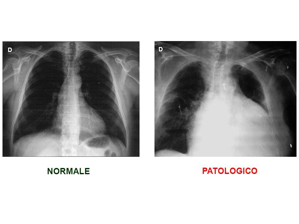 NORMALE PATOLOGICO D D