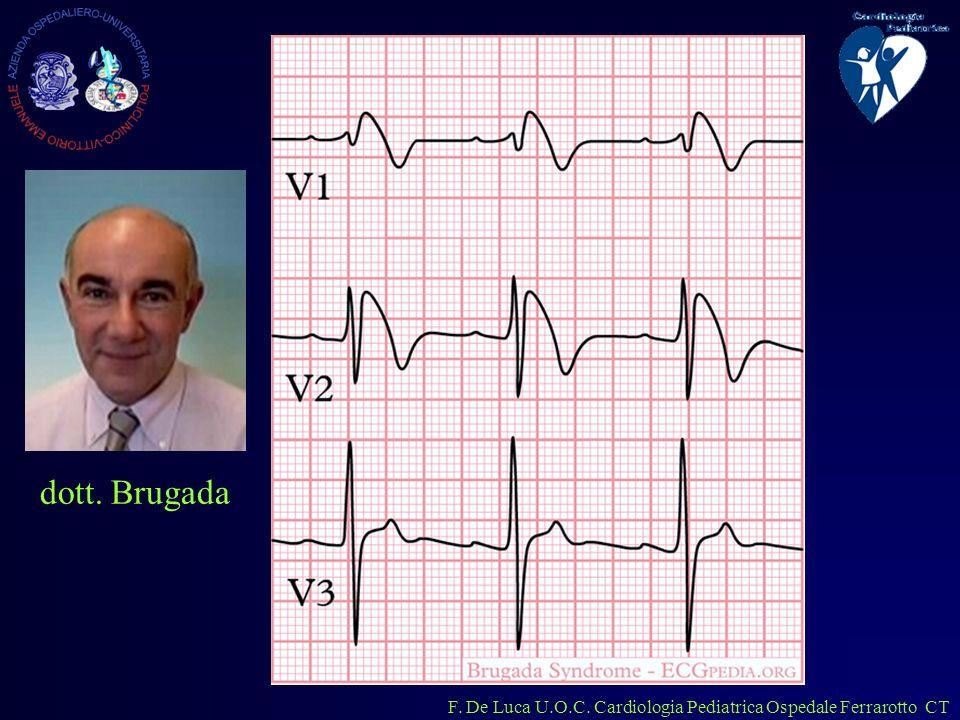 F. De Luca U.O.C. Cardiologia Pediatrica Ospedale Ferrarotto CT dott. Brugada