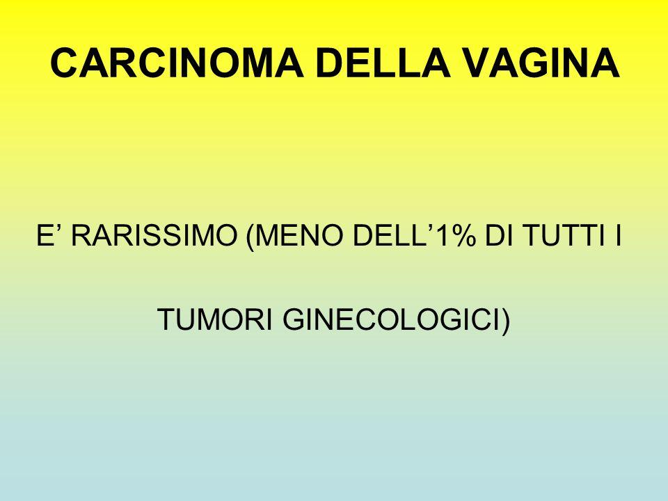 CARCINOMA DELLA VAGINA E RARISSIMO (MENO DELL1% DI TUTTI I TUMORI GINECOLOGICI)
