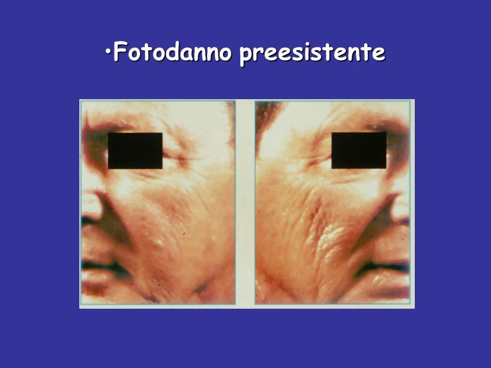 UV Sorveglianza immunitaria Tumori cutanei UV Sorveglianza immunitaria Tumori cutanei (promozione) G.Monfrecola
