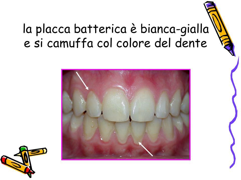 la placca batterica è bianca-gialla e si camuffa col colore del dente