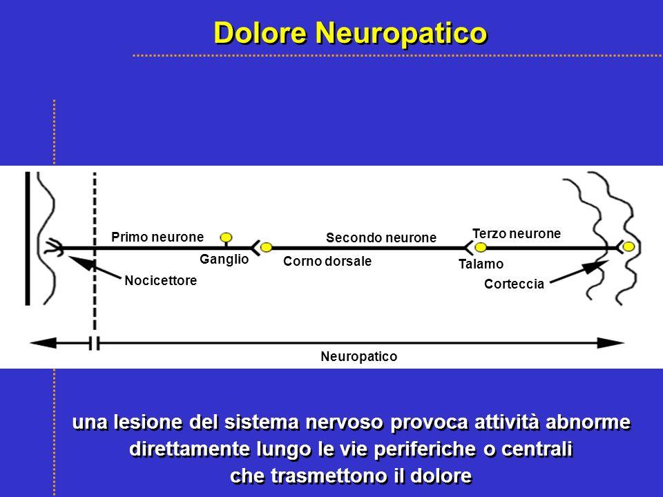 una lesione del sistema nervoso provoca attività abnorme direttamente lungo le vie periferiche o centrali che trasmettono il dolore una lesione del si