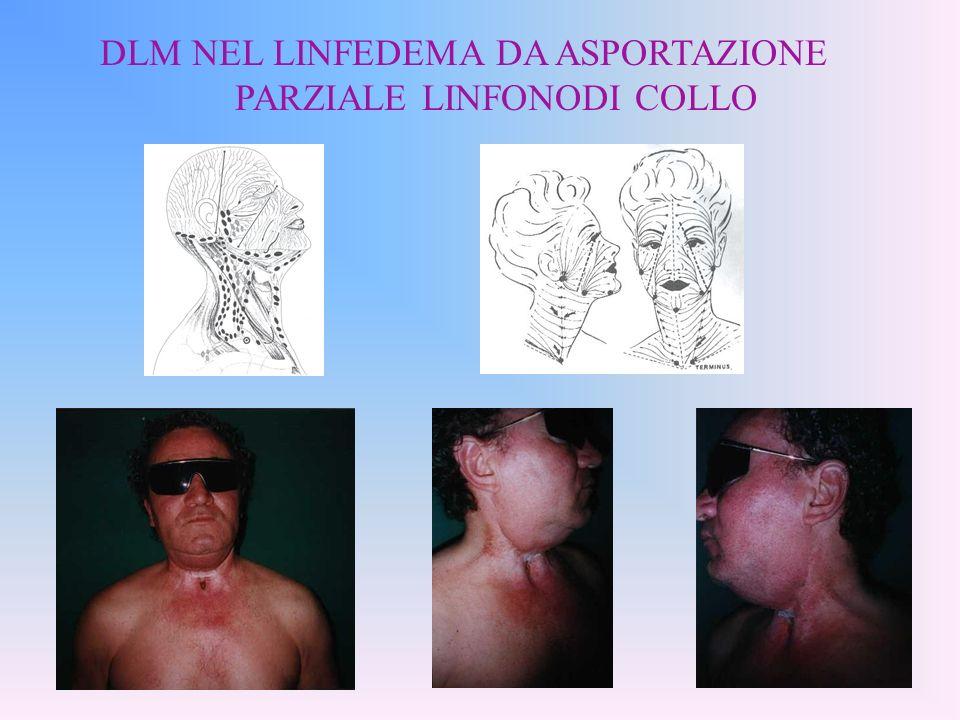 DLM NEL LINFEDEMA DA ASPORTAZIONE PARZIALE LINFONODI COLLO