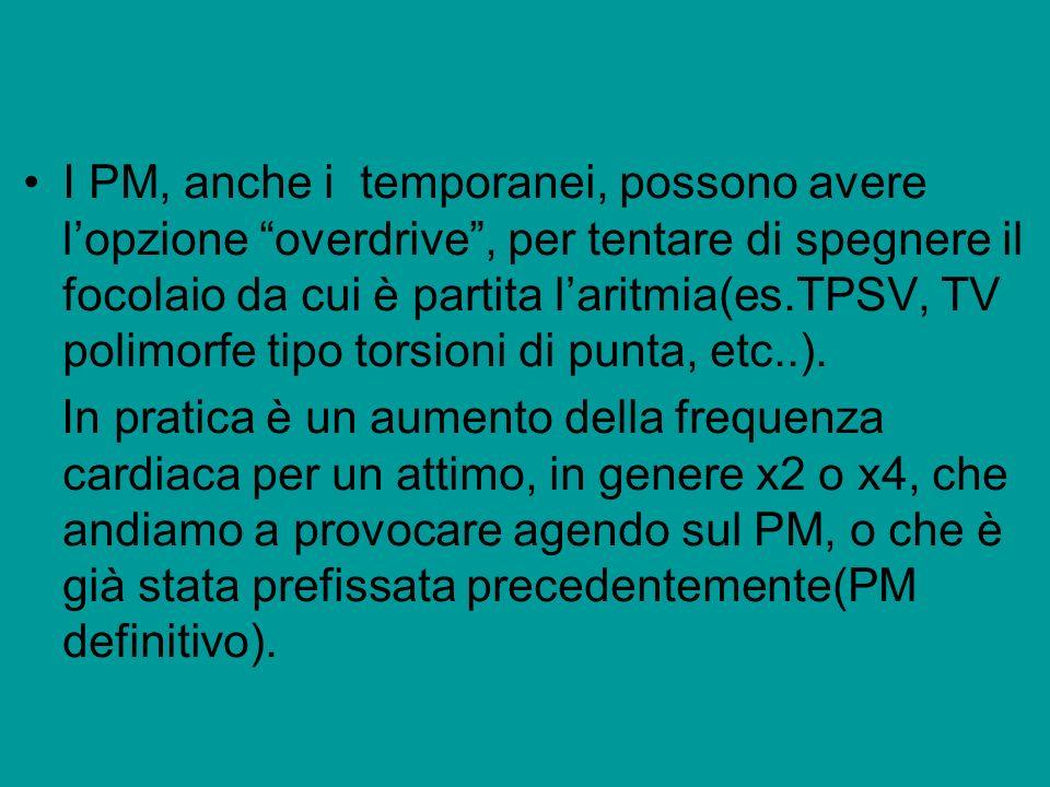 I PM, anche i temporanei, possono avere lopzione overdrive, per tentare di spegnere il focolaio da cui è partita laritmia(es.TPSV, TV polimorfe tipo t