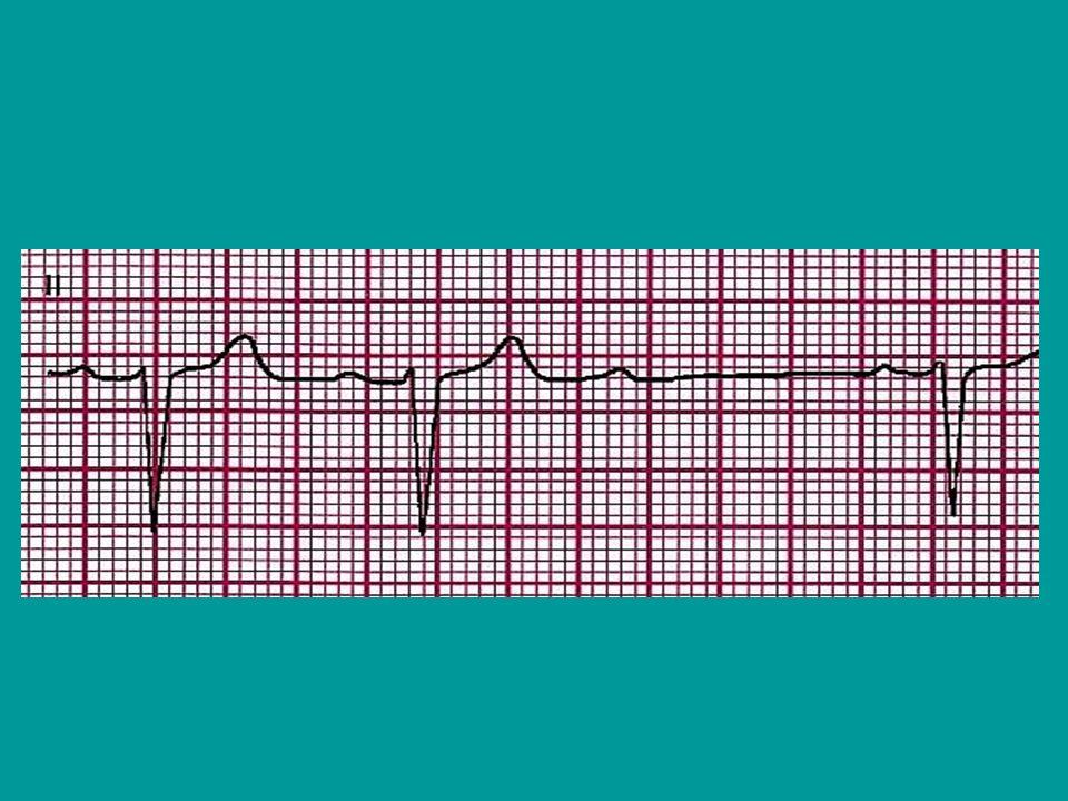 Arrivo del paziente in PS Valutazione del paziente da parte dellInfermiere triagista secondo i protocolli in uso, e chiamata del cardiologo Informare e rassicurare il paziente, molte volte il paziente è anziano, confuso, e può aver subito un trauma da caduta per lipotimia(fratture, TC,flc,etc.) Monitorare i parametri vitali con defibrillatore portatile(Lifepack), piastre per eventuale pacing esterno(ricordarsi le periferiche), PA, FC, SpO2, ECG Somministrazione O2 con mascherina Almeno un accesso venoso(venflon di grosso calibro), o CVC(Sekalon Seldy) Tricotomia inguinale bilaterale Catetere Vescicale se necessario Somministrazione eventuale terapia medica
