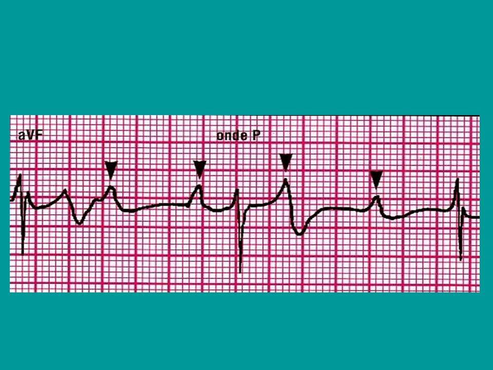 T triggerata, per sincronizzazione, cioè il PM stimola in maniera sincrona a un segnale rilevato, I inibita per inibizione, cioè il PM viene bloccato da un segnale rilevato nella cavità di sensing, O nessuna risposta; stimolazione asincrona D risposta duplice; quando si registra un segnale striale lo stimolo del PM viene inibito, ma se non segue unattività ventricolare intrinseca dopo un intervallo prefissato(0,20 sec.), si attiva il PM ventricolare.