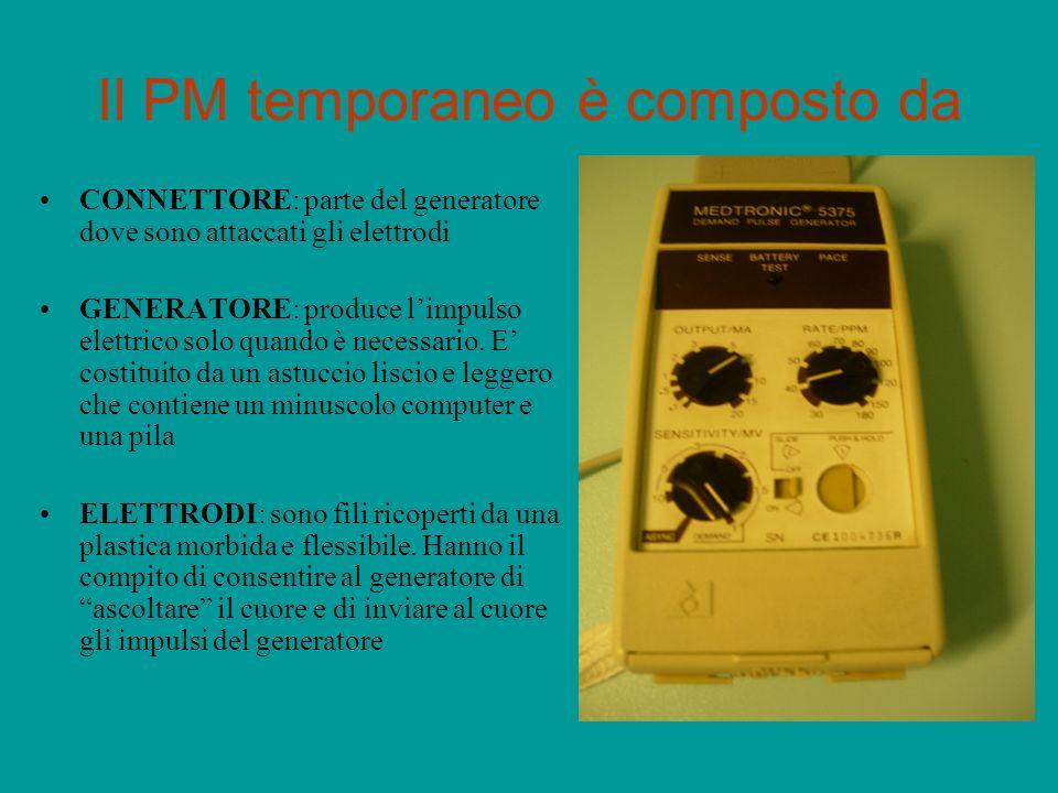 Il PM temporaneo è composto da CONNETTORE: parte del generatore dove sono attaccati gli elettrodi GENERATORE: produce limpulso elettrico solo quando è