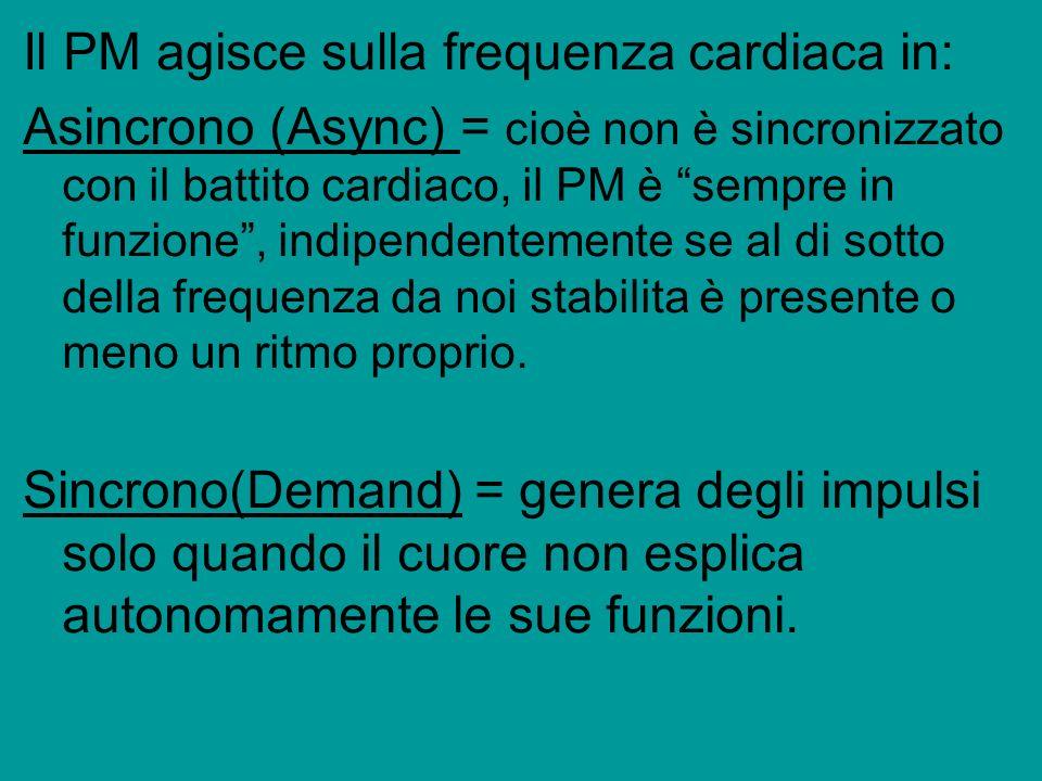 Il PM agisce sulla frequenza cardiaca in: Asincrono (Async) = cioè non è sincronizzato con il battito cardiaco, il PM è sempre in funzione, indipenden