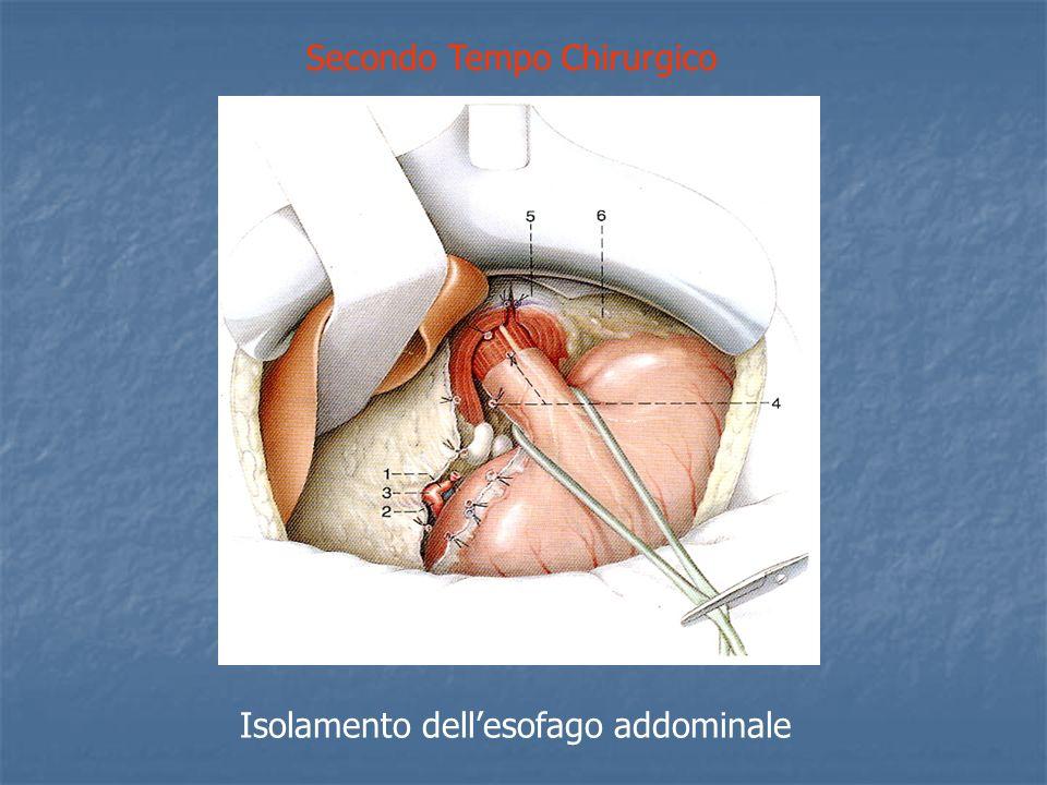Secondo Tempo Chirurgico Isolamento dellesofago addominale