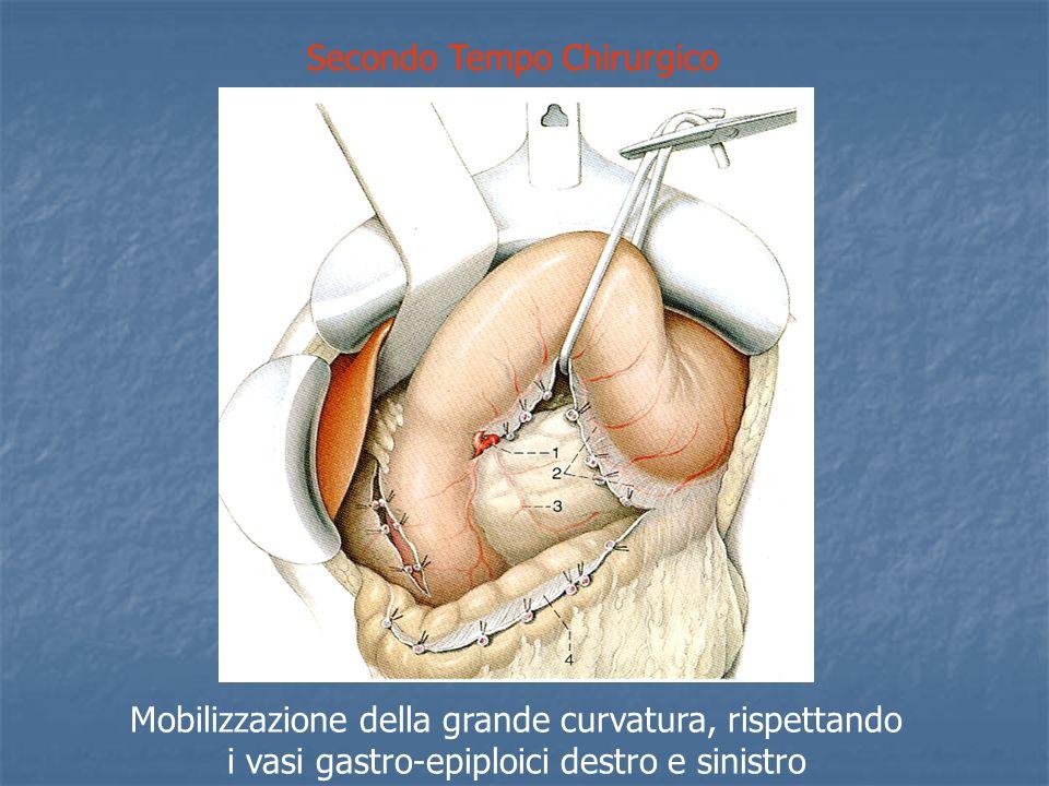 Secondo Tempo Chirurgico Mobilizzazione della grande curvatura, rispettando i vasi gastro-epiploici destro e sinistro