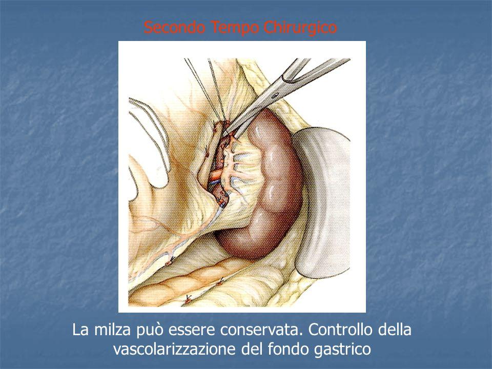 Secondo Tempo Chirurgico La milza può essere conservata.