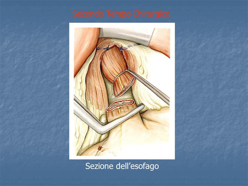 Secondo Tempo Chirurgico Sezione dellesofago