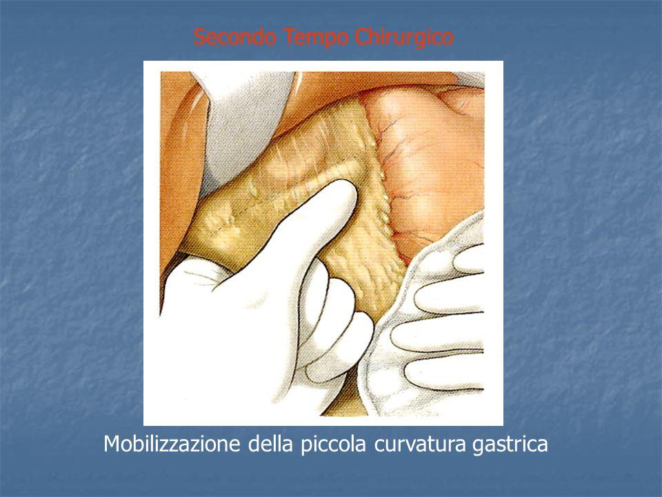 Secondo Tempo Chirurgico Mobilizzazione della piccola curvatura gastrica