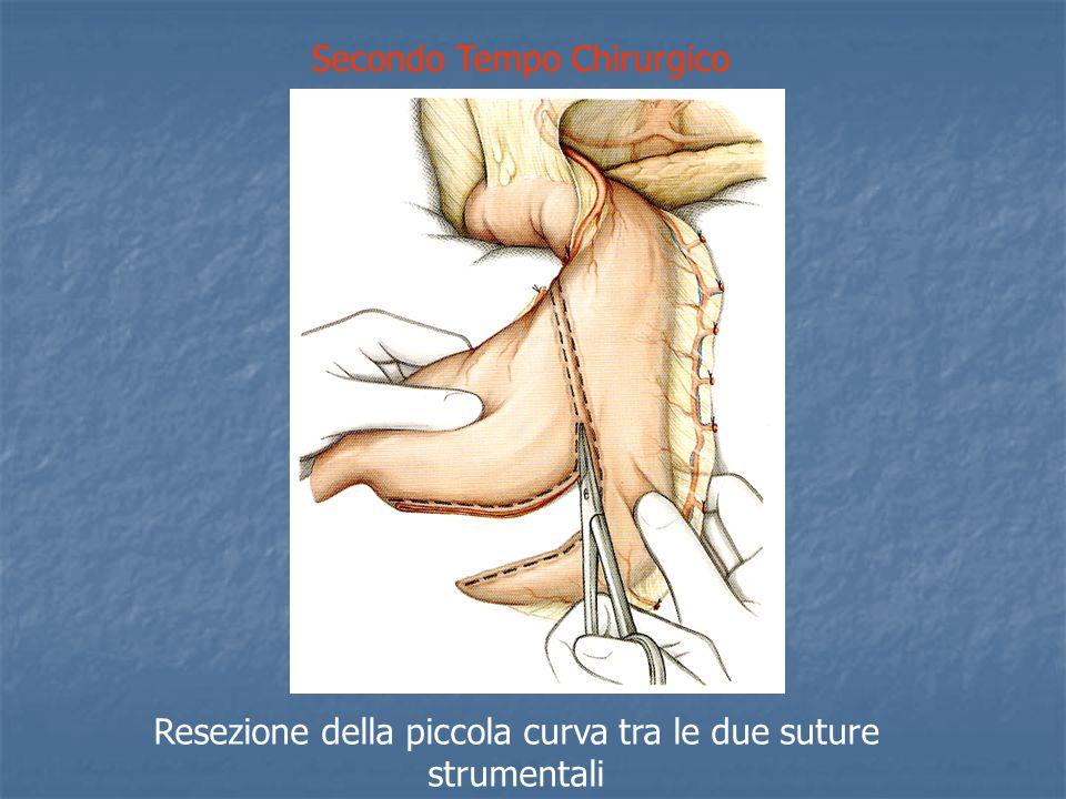 Secondo Tempo Chirurgico Resezione della piccola curva tra le due suture strumentali