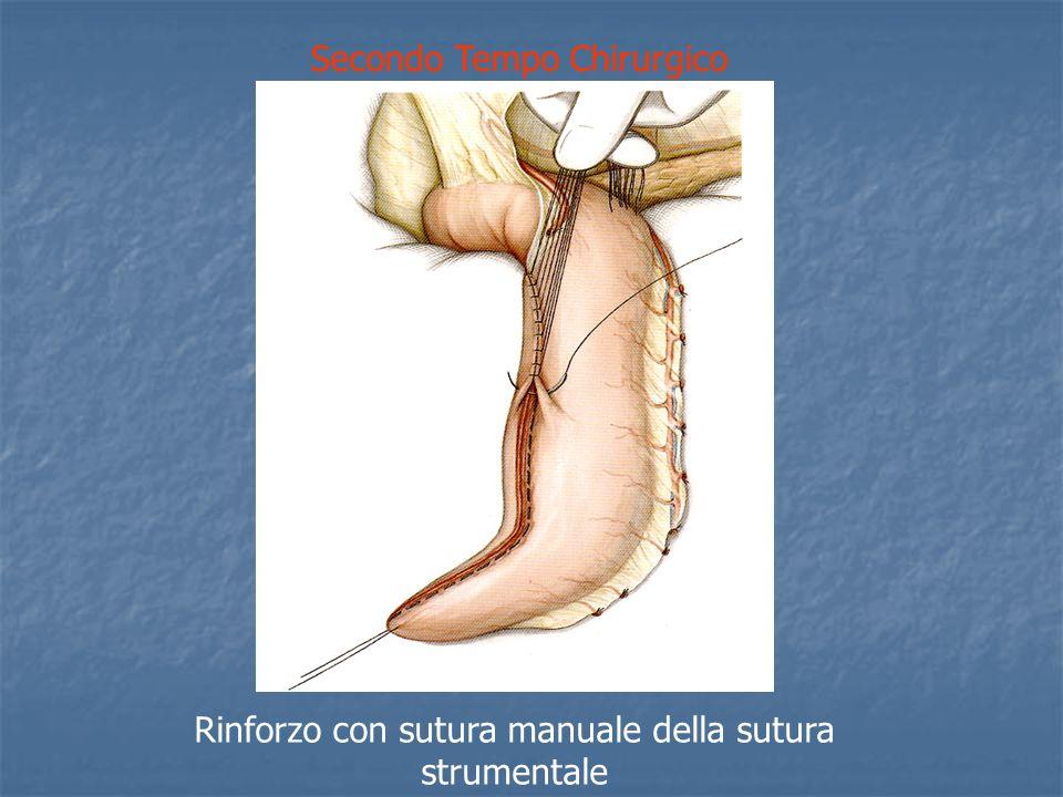 Secondo Tempo Chirurgico Rinforzo con sutura manuale della sutura strumentale