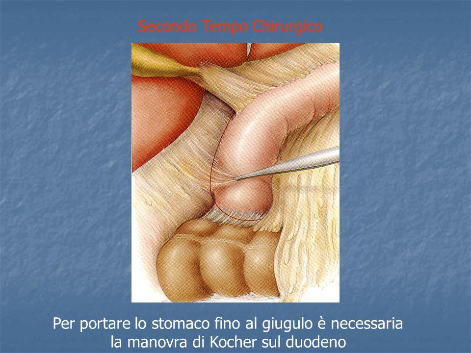 Secondo Tempo Chirurgico Per portare lo stomaco fino al giugulo è necessaria la manovra di Kocher sul duodeno