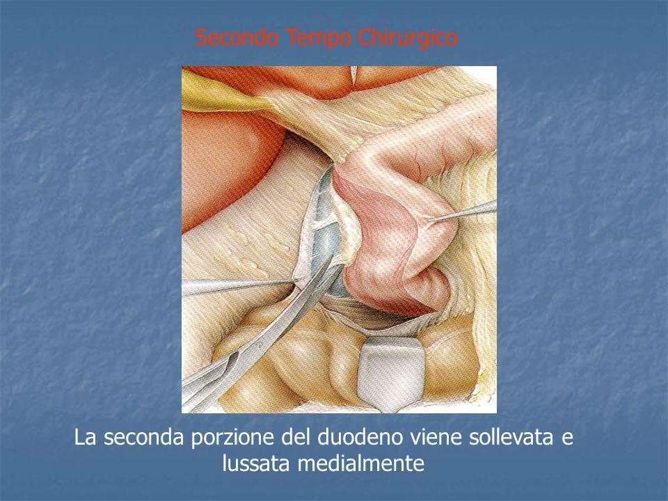 Secondo Tempo Chirurgico La seconda porzione del duodeno viene sollevata e lussata medialmente