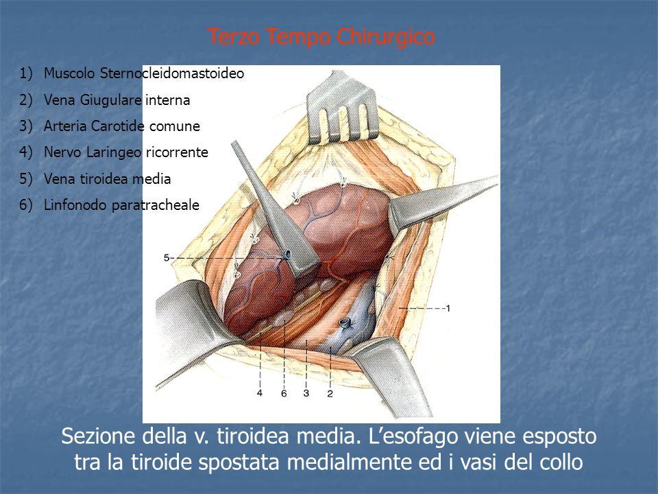 Terzo Tempo Chirurgico Sezione della v.tiroidea media.