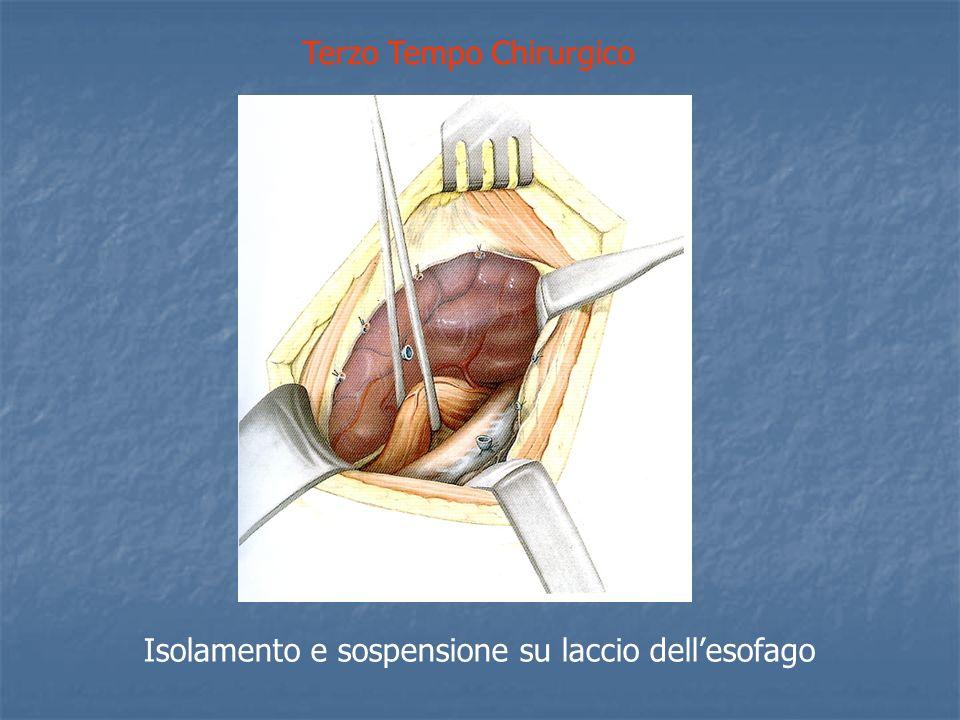 Terzo Tempo Chirurgico Isolamento e sospensione su laccio dellesofago