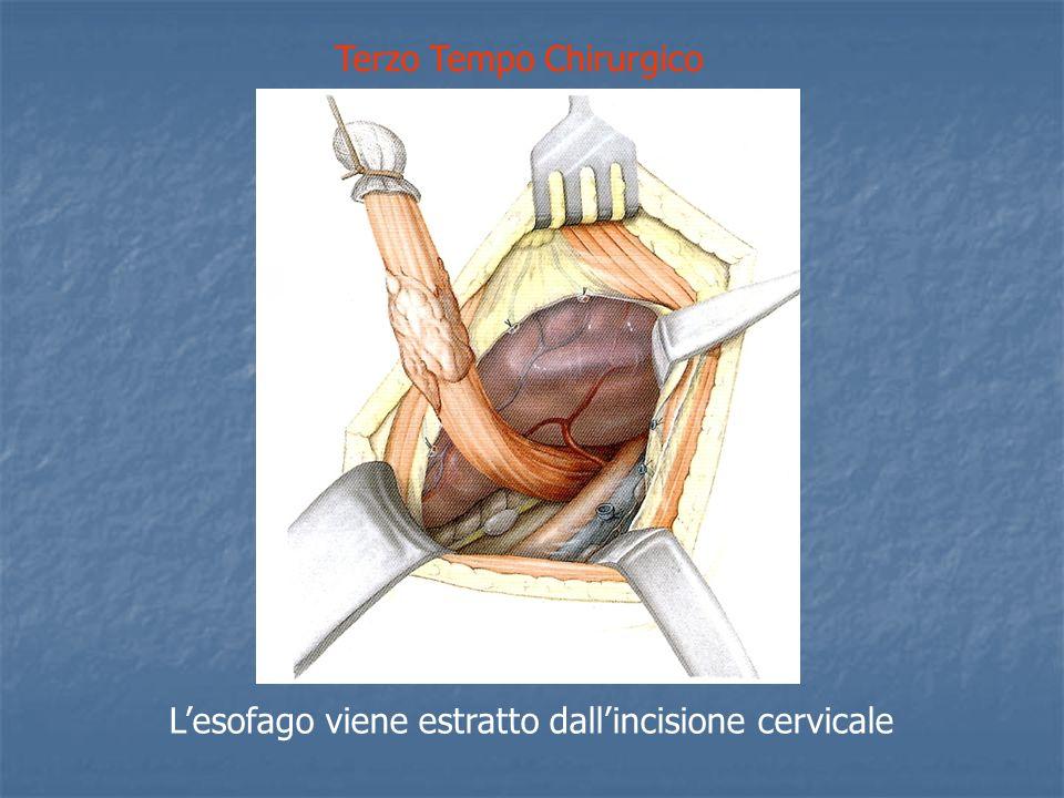 Terzo Tempo Chirurgico Lesofago viene estratto dallincisione cervicale