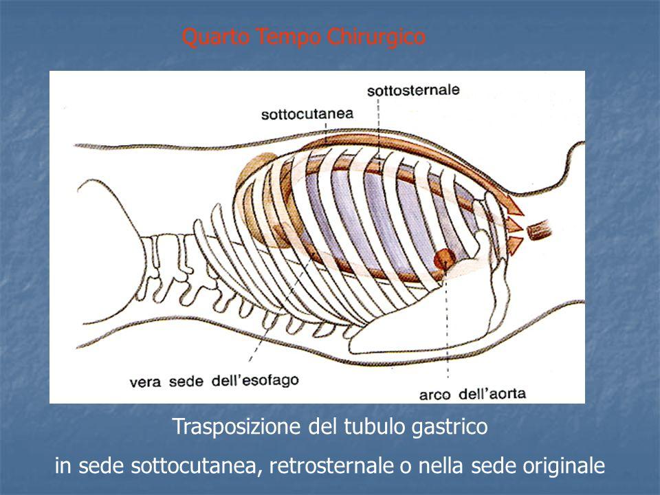 Trasposizione del tubulo gastrico in sede sottocutanea, retrosternale o nella sede originale Quarto Tempo Chirurgico