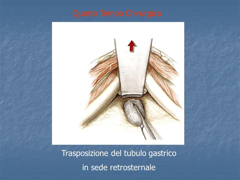 Quarto Tempo Chirurgico Trasposizione del tubulo gastrico in sede retrosternale