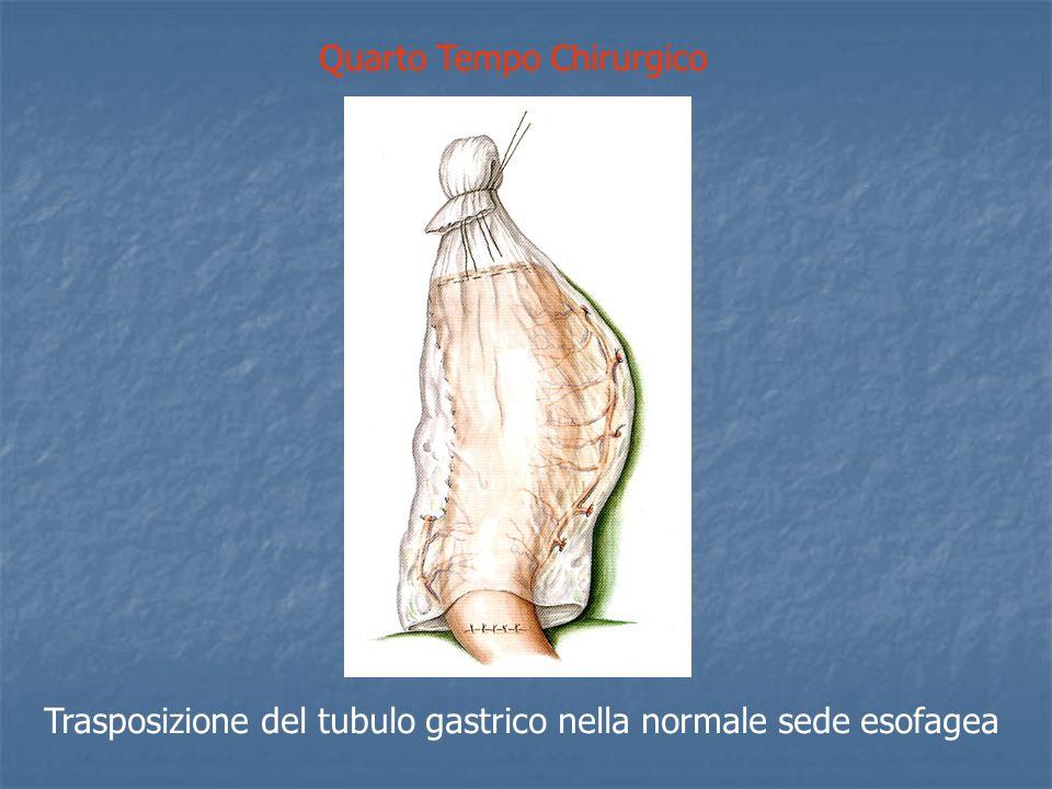 Quarto Tempo Chirurgico Trasposizione del tubulo gastrico nella normale sede esofagea