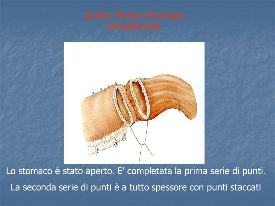 Quinto Tempo Chirurgico (Anastomosi) Lo stomaco è stato aperto.