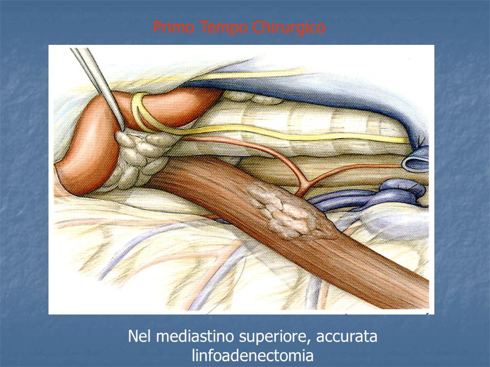 Primo Tempo Chirurgico Nel mediastino superiore, accurata linfoadenectomia