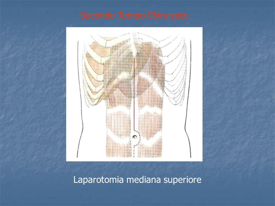 Secondo Tempo Chirurgico Laparotomia mediana superiore
