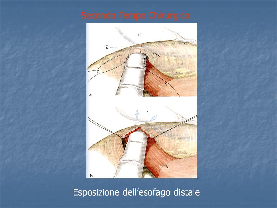 Quinto Tempo Chirurgico (Anastomosi) Prima serie di punti tra stomaco ed esofago.