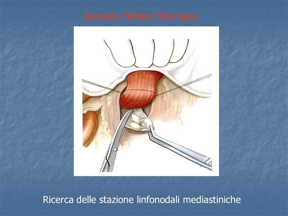Secondo Tempo Chirurgico Ricerca delle stazione linfonodali mediastiniche