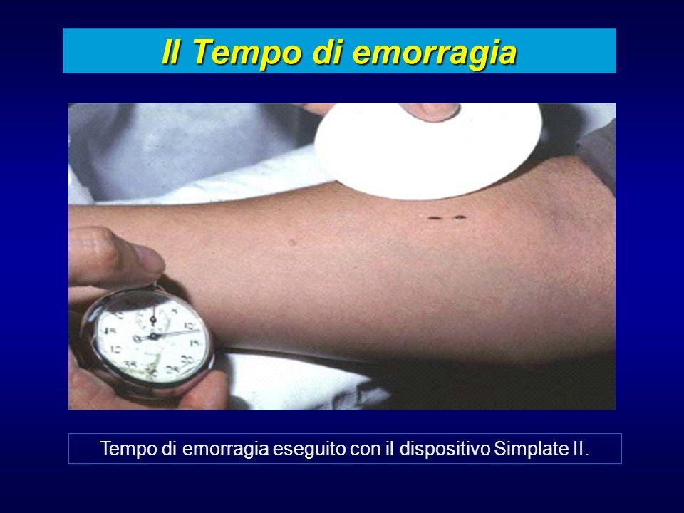 Il Tempo di emorragia Tempo di emorragia eseguito con il dispositivo Simplate II.