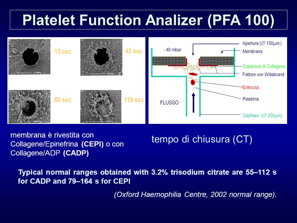 Platelet Function Analizer (PFA 100) tempo di chiusura (CT) Typical normal ranges obtained with 3.2% trisodium citrate are 55–112 s for CADP and 79–16