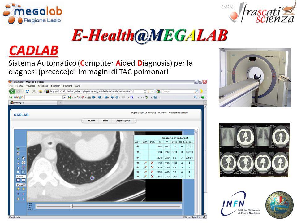 CADLAB Sistema Automatico (Computer Aided Diagnosis) per la diagnosi (precoce)di immagini di TAC polmonari E-Health@MEGALAB