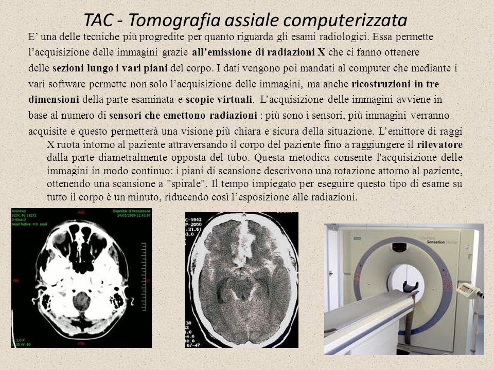 TAC - Tomografia assiale computerizzata E una delle tecniche più progredite per quanto riguarda gli esami radiologici. Essa permette lacquisizione del
