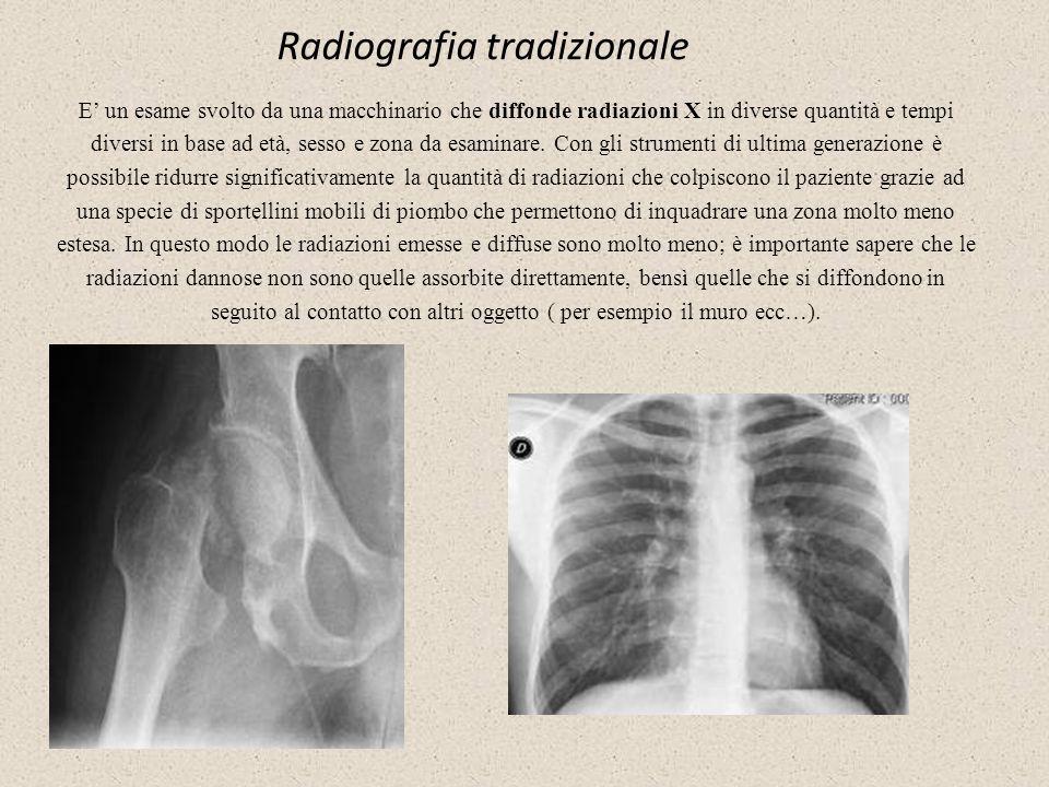 Radiografia tradizionale E un esame svolto da una macchinario che diffonde radiazioni X in diverse quantità e tempi diversi in base ad età, sesso e zo