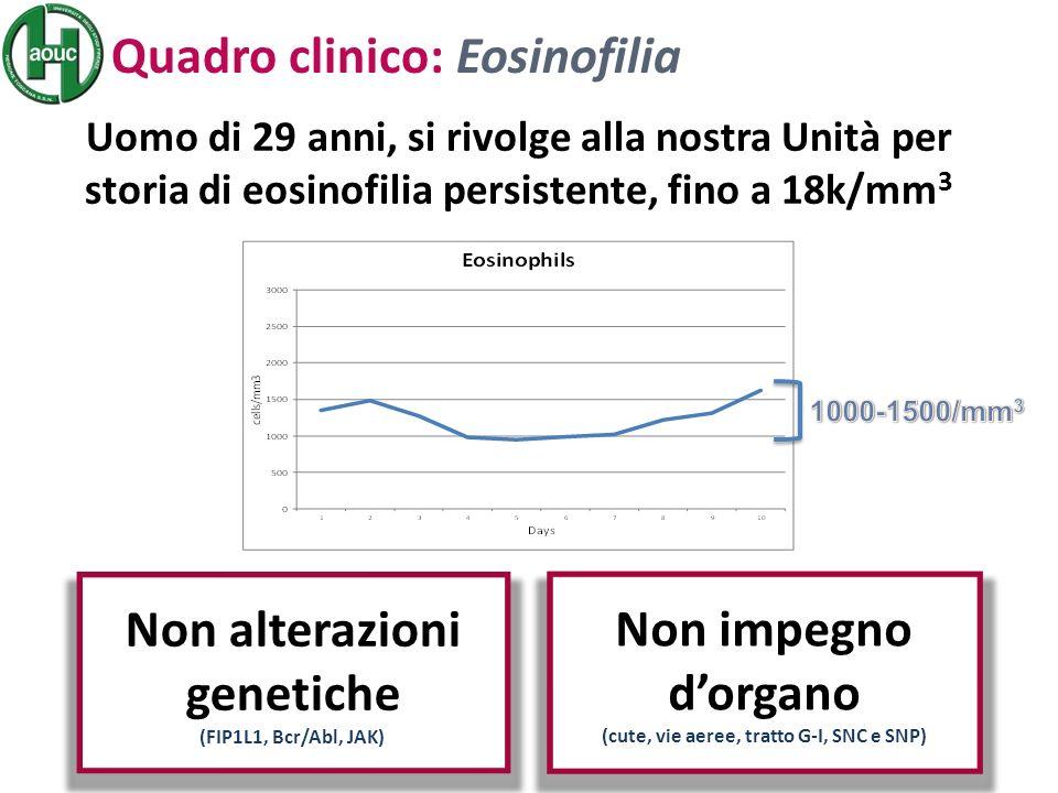 Uomo di 29 anni, si rivolge alla nostra Unità per storia di eosinofilia persistente, fino a 18k/mm 3 Non impegno dorgano (cute, vie aeree, tratto G-I, SNC e SNP) Quadro clinico: Eosinofilia Non alterazioni genetiche (FIP1L1, Bcr/Abl, JAK)