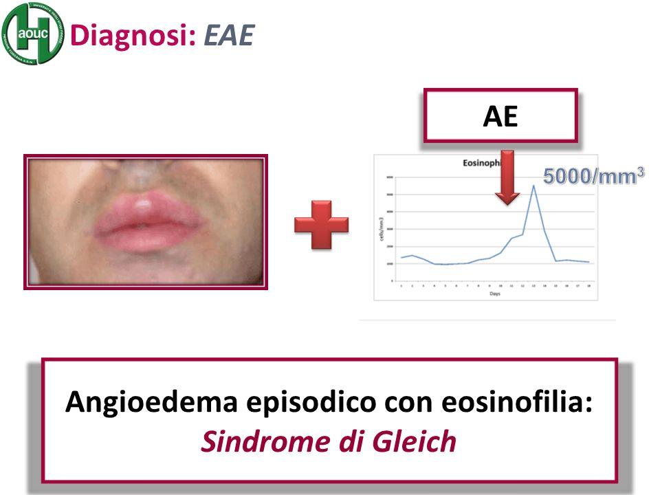 Diagnosi: EAE Angioedema episodico con eosinofilia: Sindrome di Gleich AE