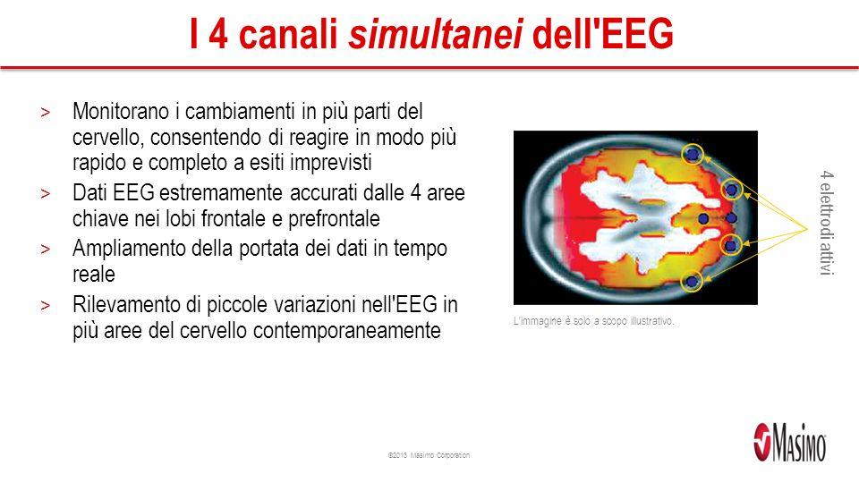 ©2013 Masimo Corporation I 4 canali simultanei dell EEG > Monitorano i cambiamenti in più parti del cervello, consentendo di reagire in modo più rapido e completo a esiti imprevisti > Dati EEG estremamente accurati dalle 4 aree chiave nei lobi frontale e prefrontale > Ampliamento della portata dei dati in tempo reale > Rilevamento di piccole variazioni nell EEG in più aree del cervello contemporaneamente L immagine è solo a scopo illustrativo.