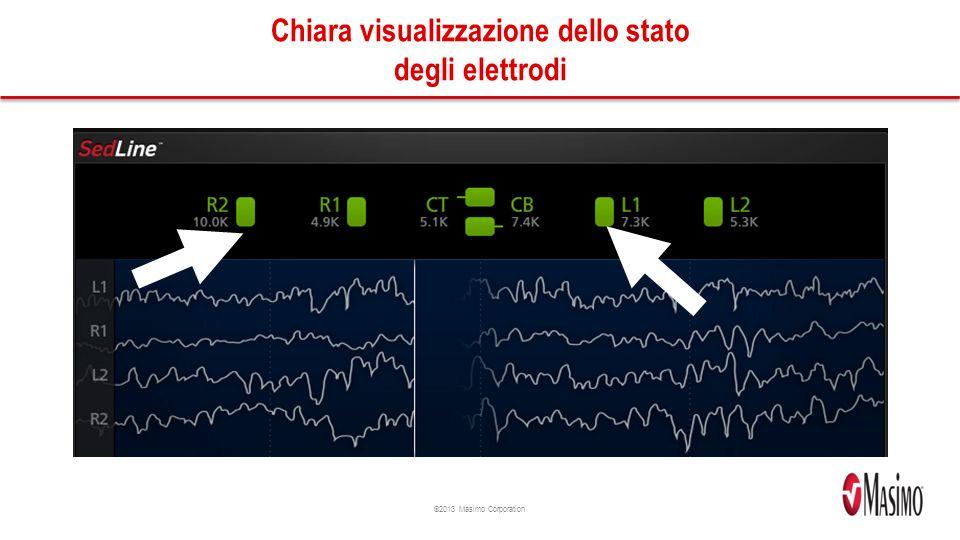 ©2013 Masimo Corporation Chiara visualizzazione dello stato degli elettrodi