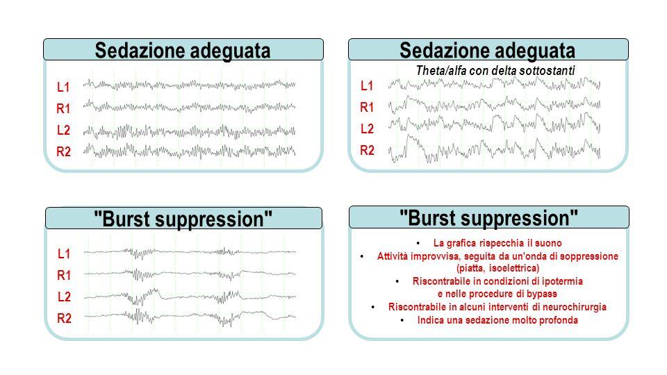 La grafica rispecchia il suono Attività improvvisa, seguita da un onda di soppressione (piatta, isoelettrica) Riscontrabile in condizioni di ipotermia e nelle procedure di bypass Riscontrabile in alcuni interventi di neurochirurgia Indica una sedazione molto profonda L1 R1 L2 R2 Burst suppression L1 R1 L2 R2 L1 R1 L2 R2 Theta/alfa con delta sottostanti Sedazione adeguata Burst suppression