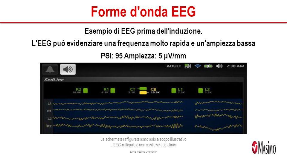 ©2013 Masimo Corporation Forme d onda EEG Esempio di EEG prima dell induzione.