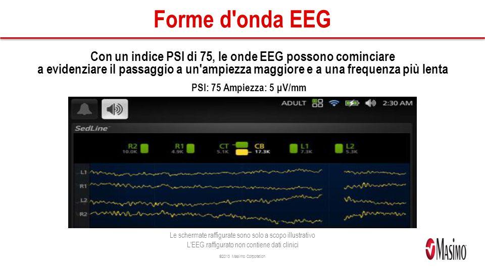 ©2013 Masimo Corporation Forme d onda EEG Con un indice PSI di 75, le onde EEG possono cominciare a evidenziare il passaggio a un ampiezza maggiore e a una frequenza più lenta PSI: 75 Ampiezza: 5 μV/mm Le schermate raffigurate sono solo a scopo illustrativo L EEG raffigurato non contiene dati clinici