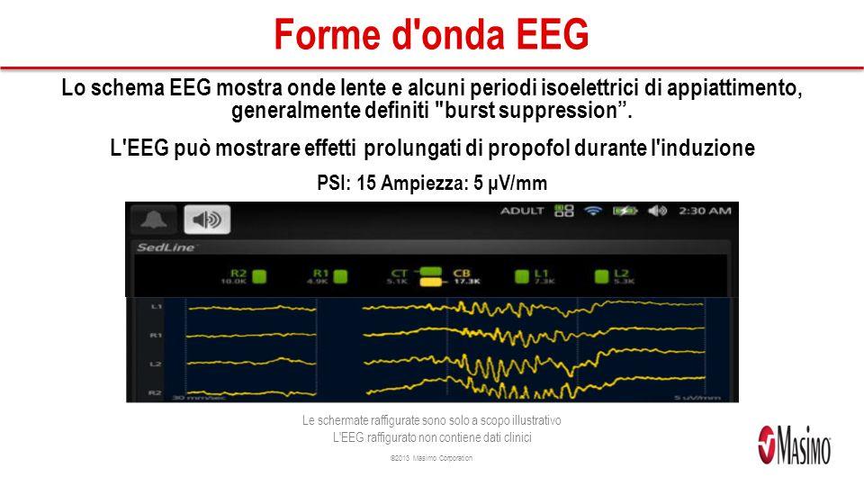 ©2013 Masimo Corporation Forme d onda EEG Lo schema EEG mostra onde lente e alcuni periodi isoelettrici di appiattimento, generalmente definiti burst suppression.