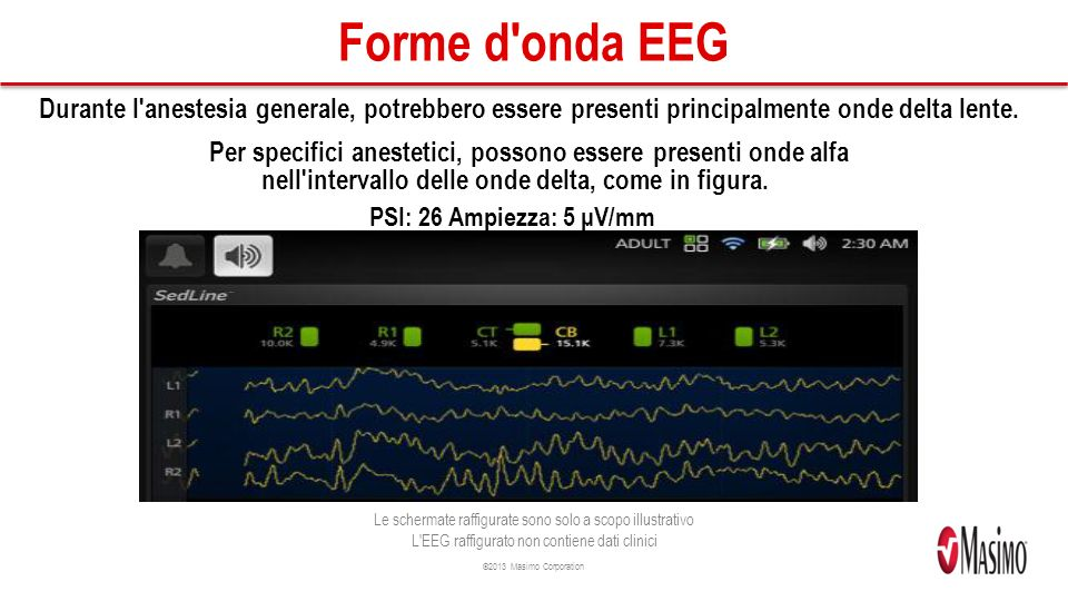©2013 Masimo Corporation Forme d onda EEG Durante l anestesia generale, potrebbero essere presenti principalmente onde delta lente.